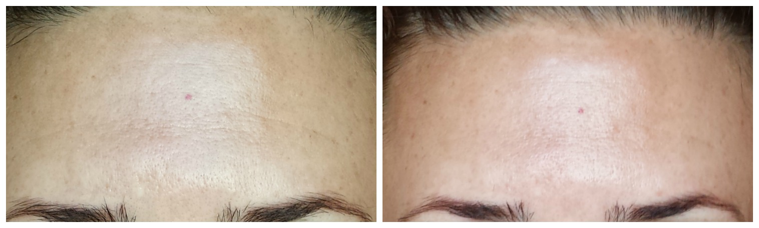 resultados del antes y después