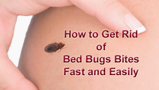 How To Get Rid Of Bed Bugs Bites Fast And Easily Arbkan