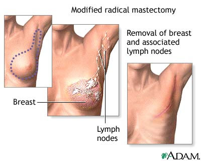 Biological therapy breast cancer