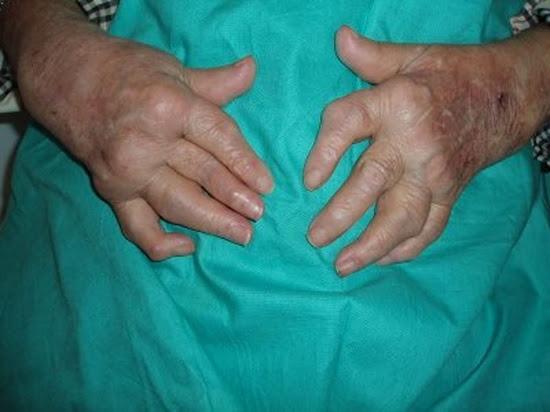 Que significa soñar con artritis