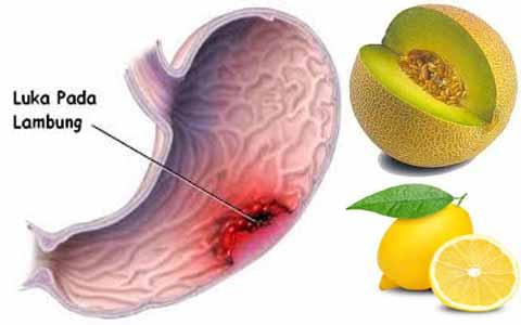 Ampuh Mengatasi Vertigo, Maag Akut, Migrain, Asam Urat Dengan Kombinasi Melon Dan Lemon
