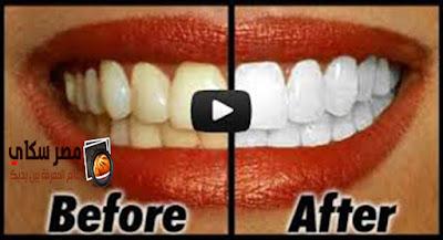 طرق طبيعية لتبييض الأسنان Natural ways to whiten your teeth