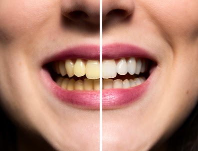 Home Remedies For Removing Tartar From Teeth