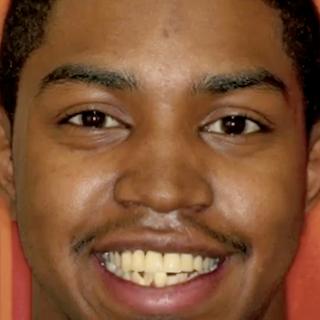 Scrappy teeth