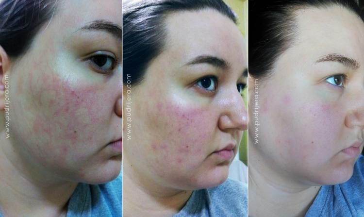 Kozmetička nezgoda pudrijera blog reakcija gerovital