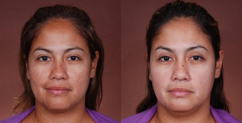 Leliminazione di pigmentary nota su una faccia nellestate