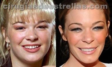 LeAnn Rimes antes y después