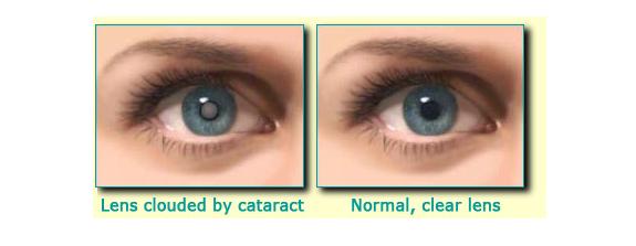 http://eye-care-hospital.com
