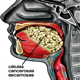 Cancer Oral e o caso Michel Douglas