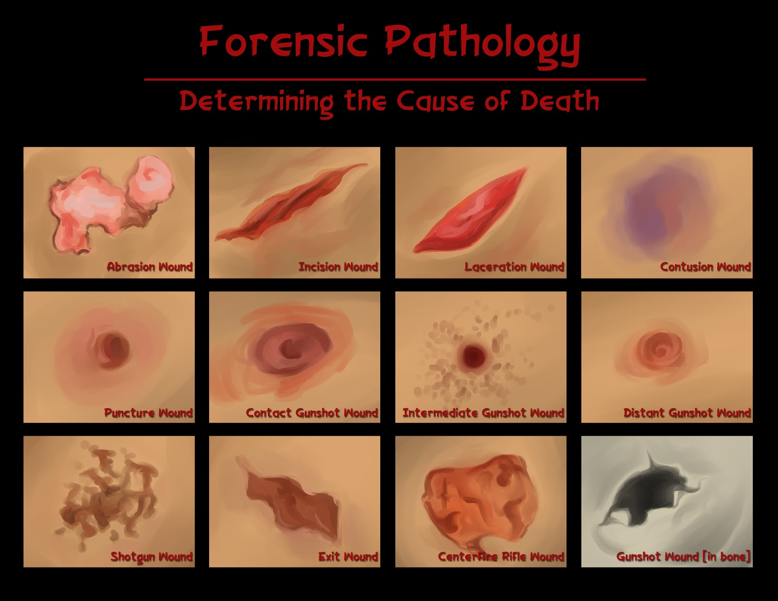 becoming a forensic pathologist The forensic pathology fellowship is a one-year program based at the king   center, a major training facility for university of washington medical center.