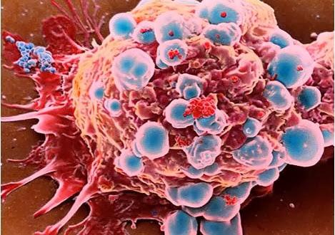 Fakta Dan Informasi Tentang Kanser, informasi, kesihatan, kanser, Proses Perkembangan Kanser,Tanda dan Gejala Kanser,Jenis-jenis Kanser,Sifat Sel Kanser