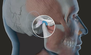 Relação entre a Odontologia e a Fonoaudiologia