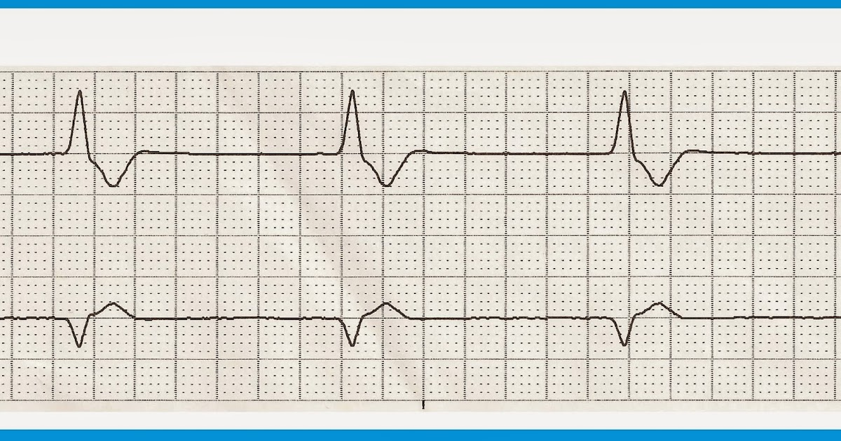 picture about Ekg Practice Strips Printable known as Ekg Educate Strips - 0425