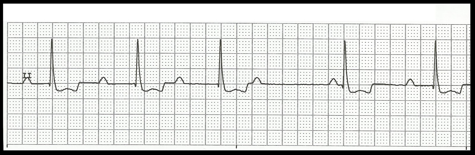 Adaptable image for ekg practice strips printable