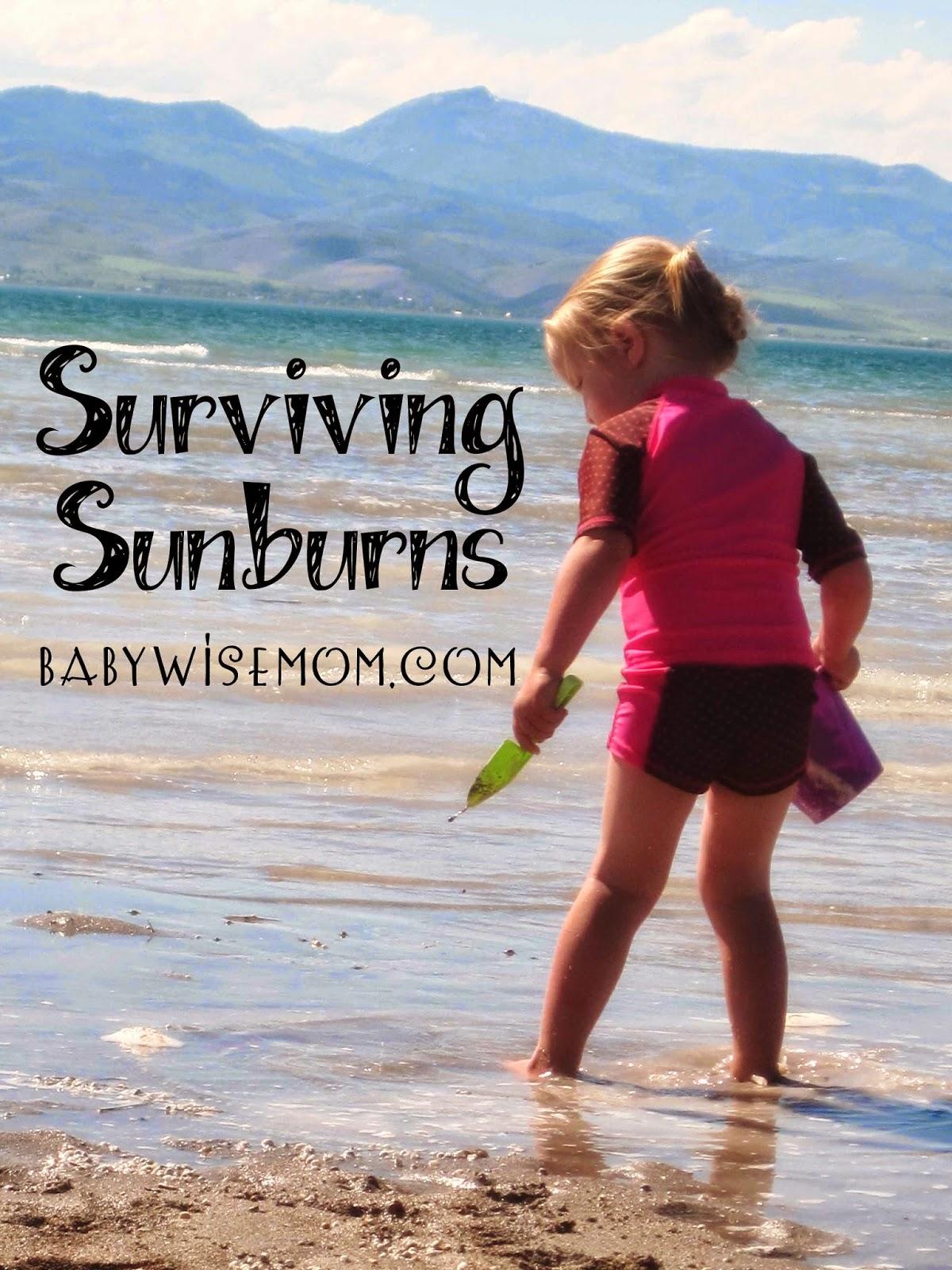 Surviving Sunburns