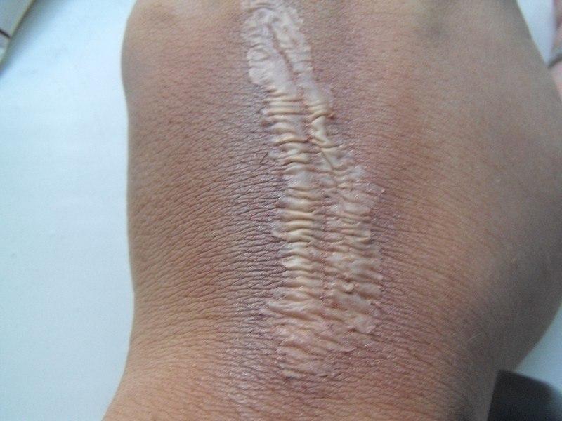 можно ли наносить тональный крем на рану