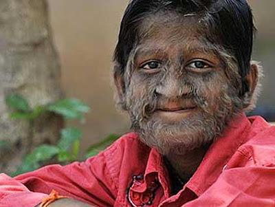 Wereolf syndrome ( Tumbuh Bulu Seperti srigala )