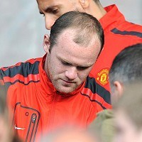 rooney hair transplant Rooney admits to hair transplant