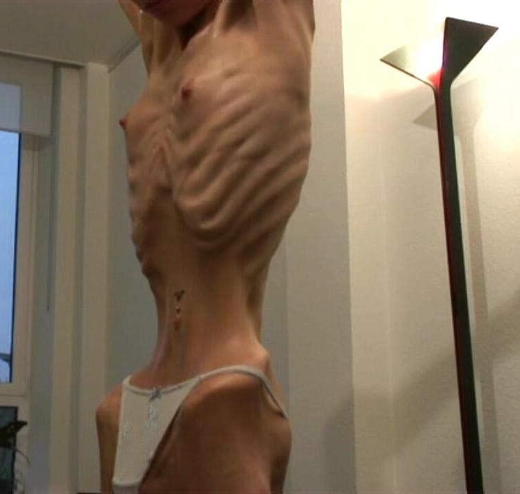 anorexia must see the bones eat Telling somebody with anorexia to just eat is like telling somebody meaning they see something different in the and nobody wants to hug a bag of bones.