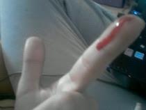 Herida trás herida, me hacen ser fuerte y no sangrar más.