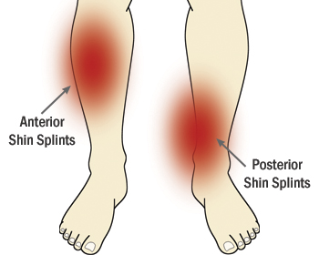 Shin splints are a really poorly diagnosed term. They usually apply to