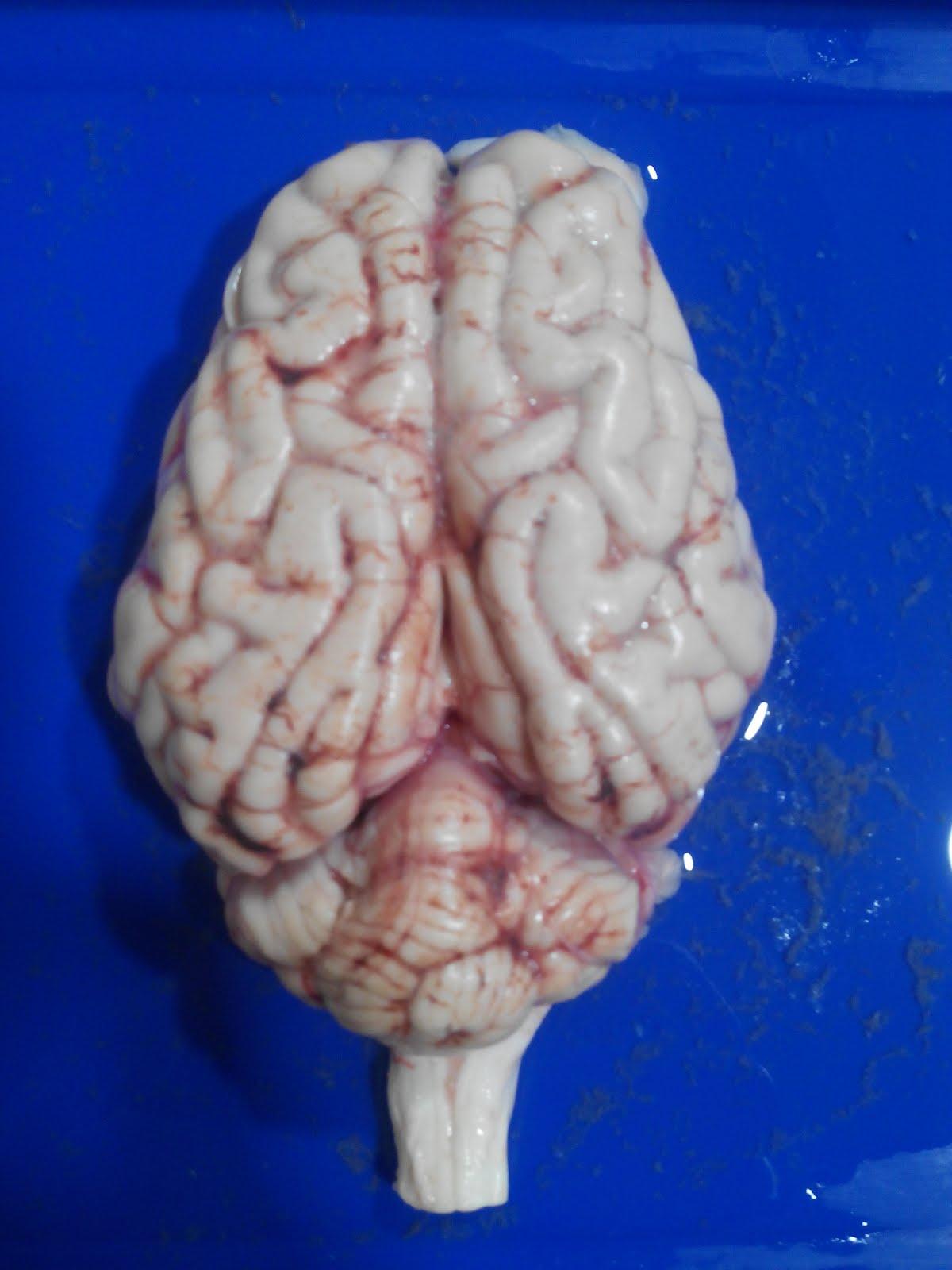 Bonito Anatomía De Un Cerebro De Oveja Embellecimiento - Imágenes de ...
