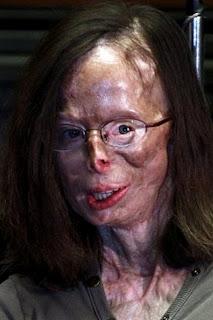 diaforetiko.gr : tromaktiko1168  Της έριξε βιτριόλι επειδή τον χώρισε! – ΠΡΟΣΟΧΗ: Σκληρές φωτογραφίες