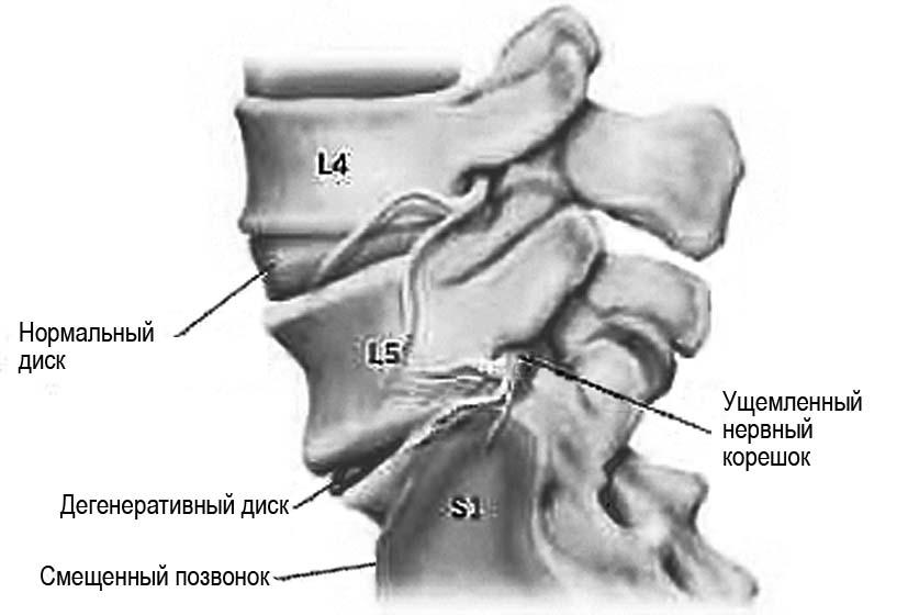 Что делать при защемление нервов грудного отдела