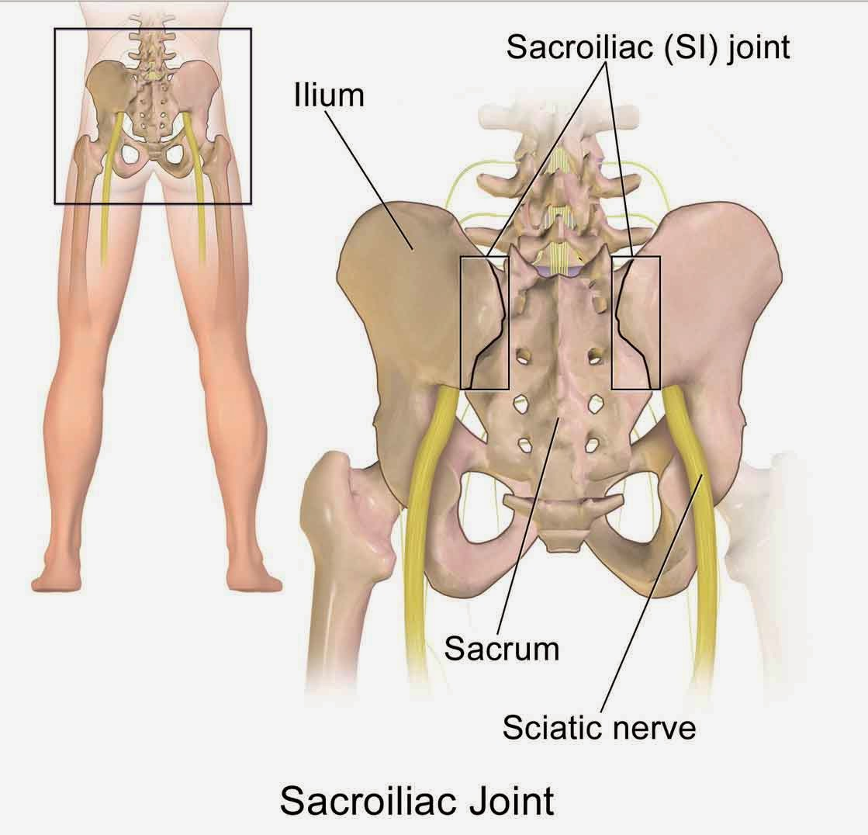 Sakit pinggang sebelah kanan bagian belakang