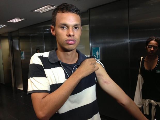 Alysson Prata mostra hematoma; ele diz ter sido atingido pela Polícia Legislativa (Foto: Nathalia Passarinho)