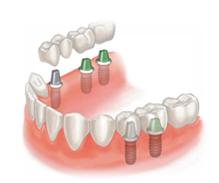 prix remplacement dent
