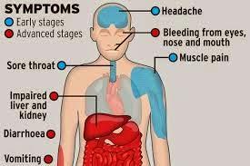 gambar gejala ebola