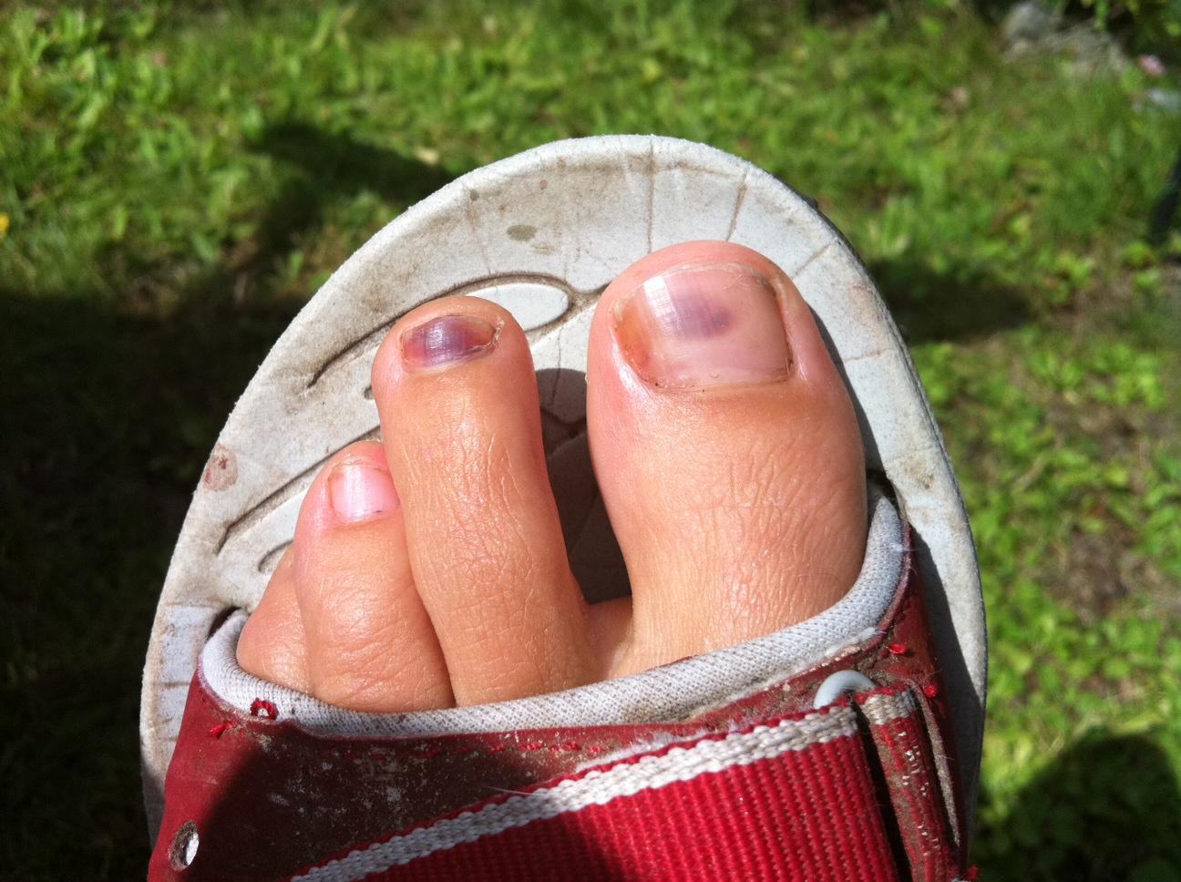 blå under naglarna