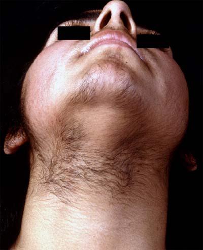 Sluts like excess facial hair menopause