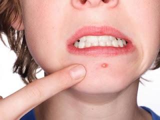 eliminating Acne