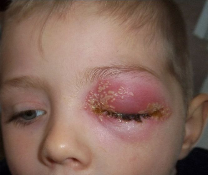 herpes simplex eye disease - uthscsa.edu
