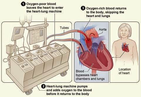 mesin jantung