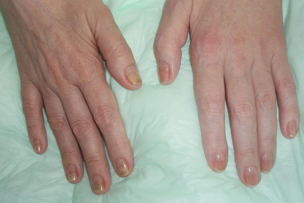 Anemia Pale Skin
