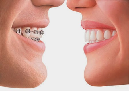 http://dentistrybangalore.com/ortho/