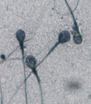 Imagen de microscopía de espermatozoides