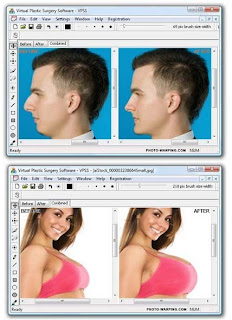 Software The Virtual Plastic Surgery