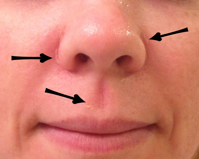 Dry red patch on upper lip - Doctor answers on HealthTap