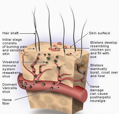 gambar penyebab penyakit cacar air