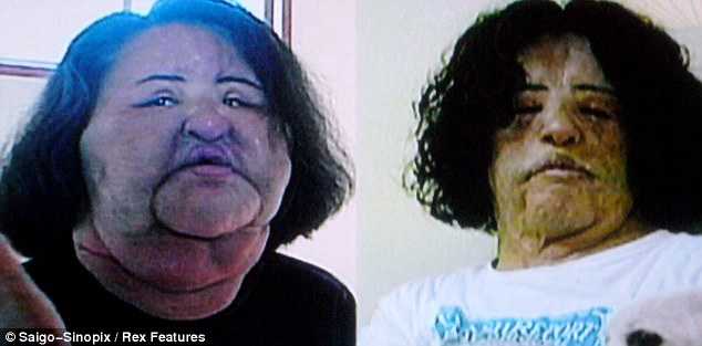 Hang Mioku's face was left so swollen by the silicone and cooking oil, left, that her own parents did not recognise her. Despite 10 operations her face is still severely disfigured, right