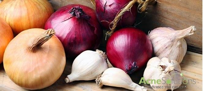 Top 5 thực phẩm tuyệt vời cho da vào mùa đông