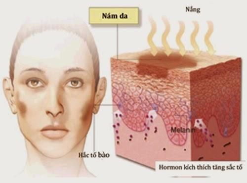 Phương pháp điều trị nám da sau sinh hiệu quả nhất hiện nay.