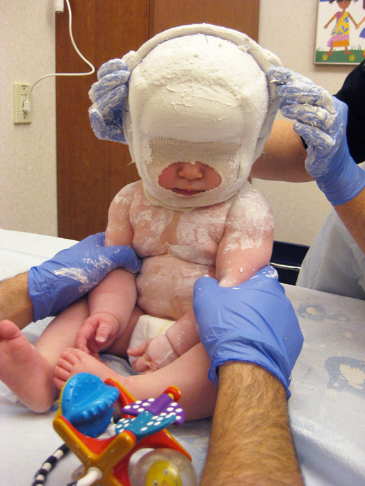 Plagiocephaly pat the belly for Baby cranial helmet decoration