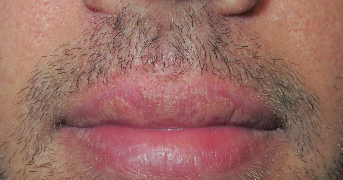Picor labios genitales