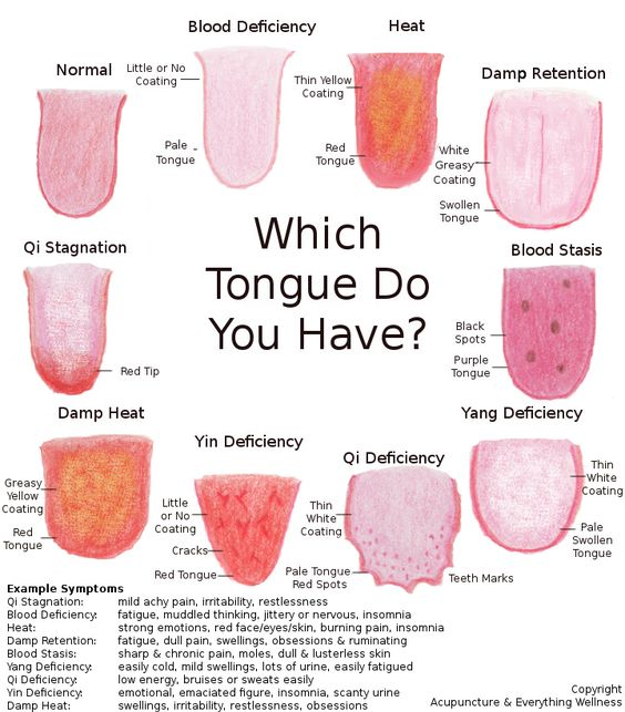 ce arata limba
