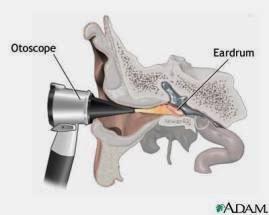 pengobatan herbal infeksi telinga